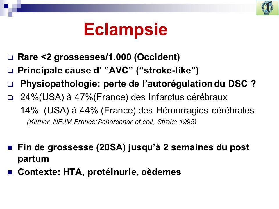 Eclampsie Rare <2 grossesses/1.000 (Occident) Principale cause d AVC (stroke-like) Physiopathologie: perte de lautorégulation du DSC ? 24%(USA) à 47%(
