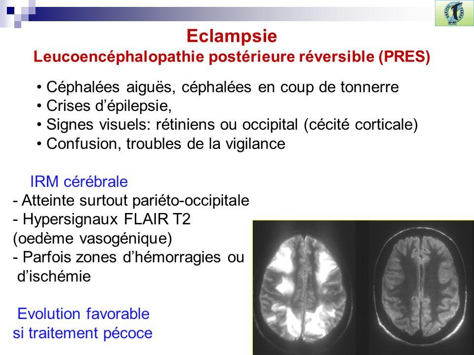 Céphalées aiguës, céphalées en coup de tonnerre Crises dépilepsie, Signes visuels: rétiniens ou occipital (cécité corticale) Confusion, troubles de la vigilance IRM cérébrale - Atteinte surtout pariéto-occipitale - Hypersignaux FLAIR T2 (oedème vasogénique) - Parfois zones dhémorragies ou dischémie Evolution favorable si traitement pécoce Eclampsie Leucoencéphalopathie postérieure réversible (PRES)