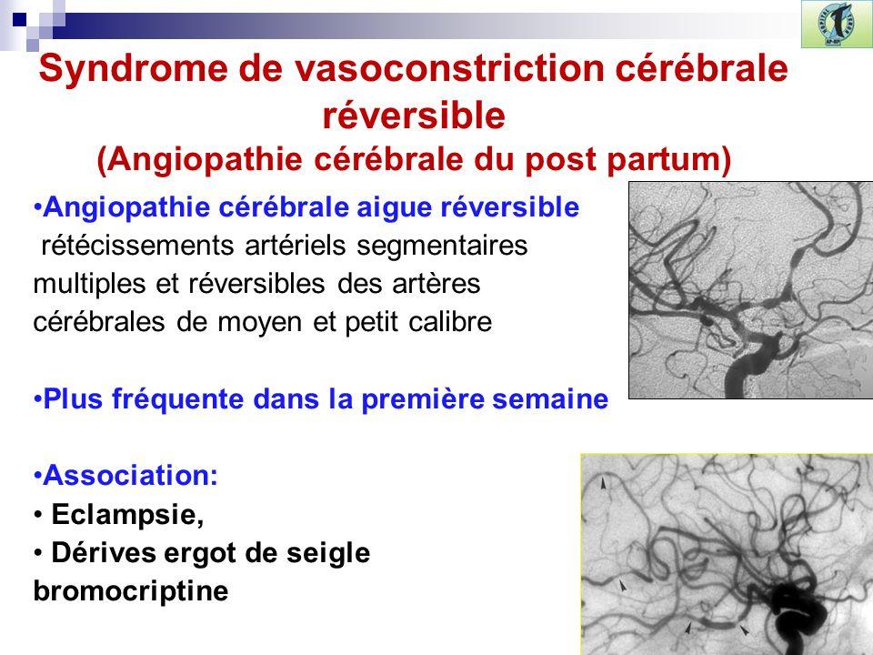Syndrome de vasoconstriction cérébrale réversible (Angiopathie cérébrale du post partum) Angiopathie cérébrale aigue réversible rétécissements artériels segmentaires multiples et réversibles des artères cérébrales de moyen et petit calibre Plus fréquente dans la première semaine Association: Eclampsie, Dérives ergot de seigle bromocriptine