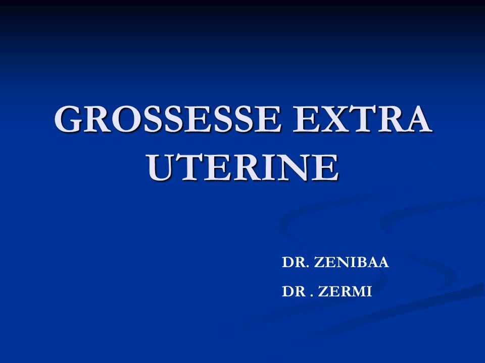 GROSSESSE EXTRA UTERINE DR. ZENIBAA DR. ZERMI