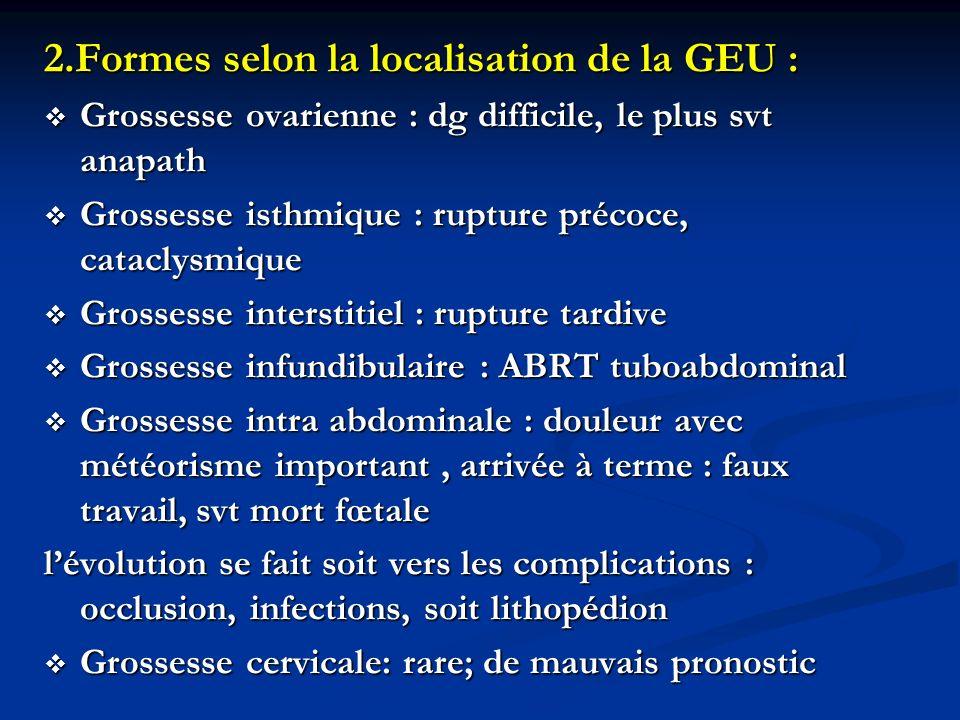 2.Formes selon la localisation de la GEU : Grossesse ovarienne : dg difficile, le plus svt anapath Grossesse ovarienne : dg difficile, le plus svt ana