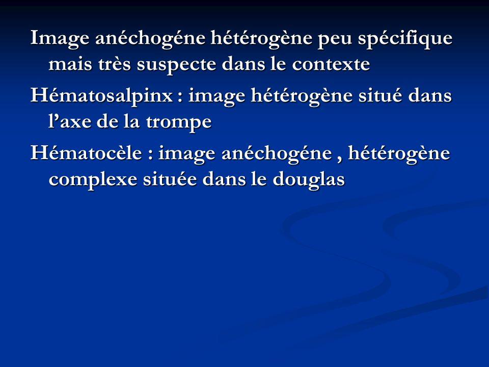 Image anéchogéne hétérogène peu spécifique mais très suspecte dans le contexte Hématosalpinx : image hétérogène situé dans laxe de la trompe Hématocèl