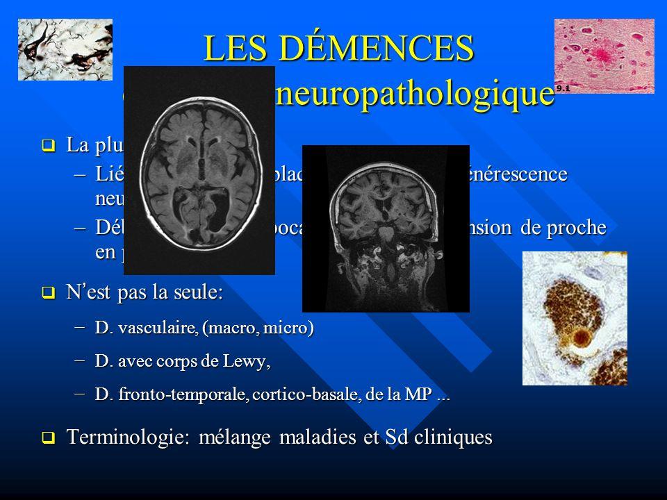 LES DÉMENCES définition neuropathologique La plus fréquente : MA La plus fréquente : MA –Liée à des lésions : plaques séniles & dégénérescence neuro-f
