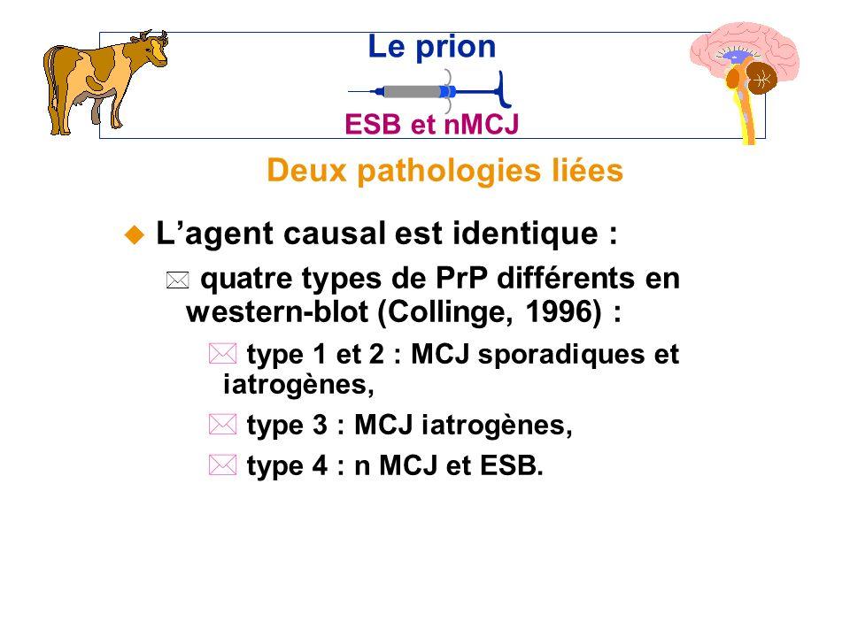 Deux pathologies liées u Lagent causal est identique : * quatre types de PrP différents en western-blot (Collinge, 1996) : * type 1 et 2 : MCJ sporadiques et iatrogènes, * type 3 : MCJ iatrogènes, * type 4 : n MCJ et ESB.