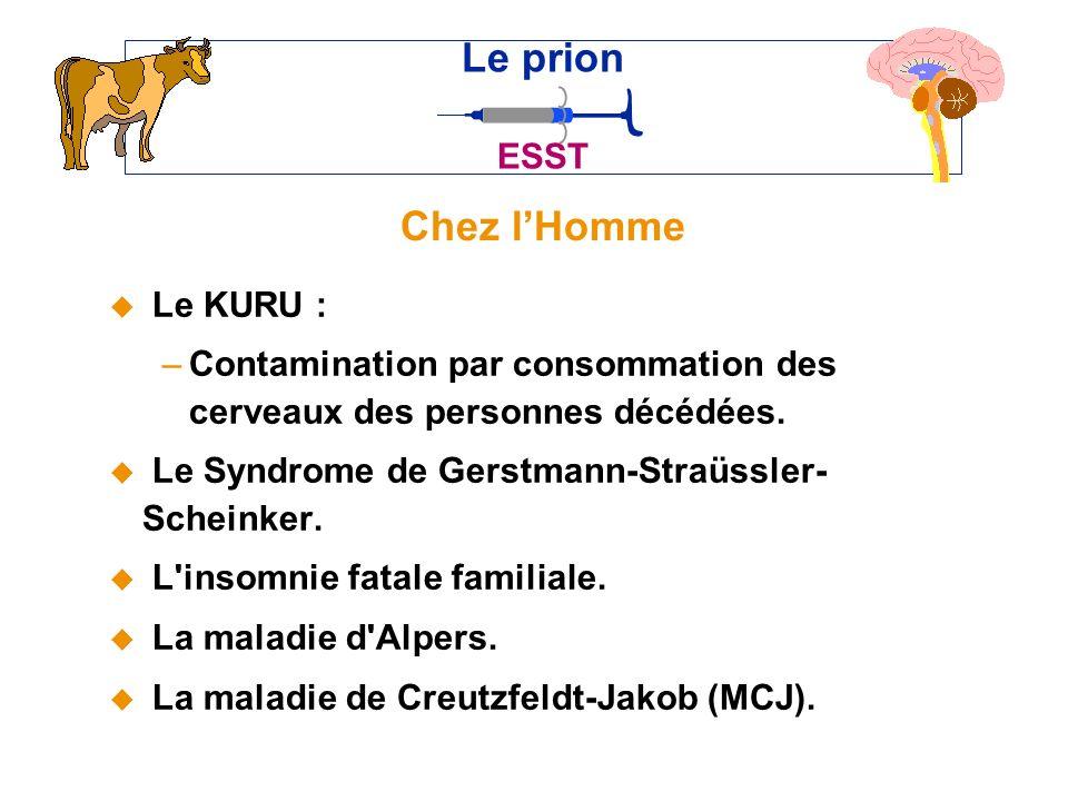 Chez lHomme u Le KURU : –Contamination par consommation des cerveaux des personnes décédées.
