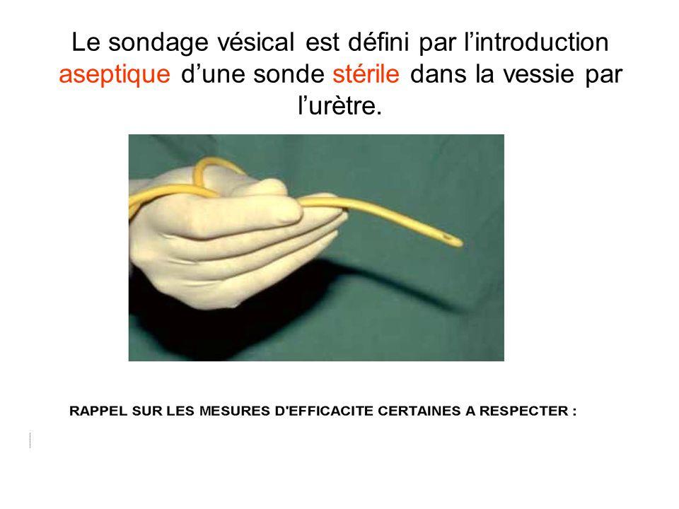 Le sondage vésical est défini par lintroduction aseptique dune sonde stérile dans la vessie par lurètre.