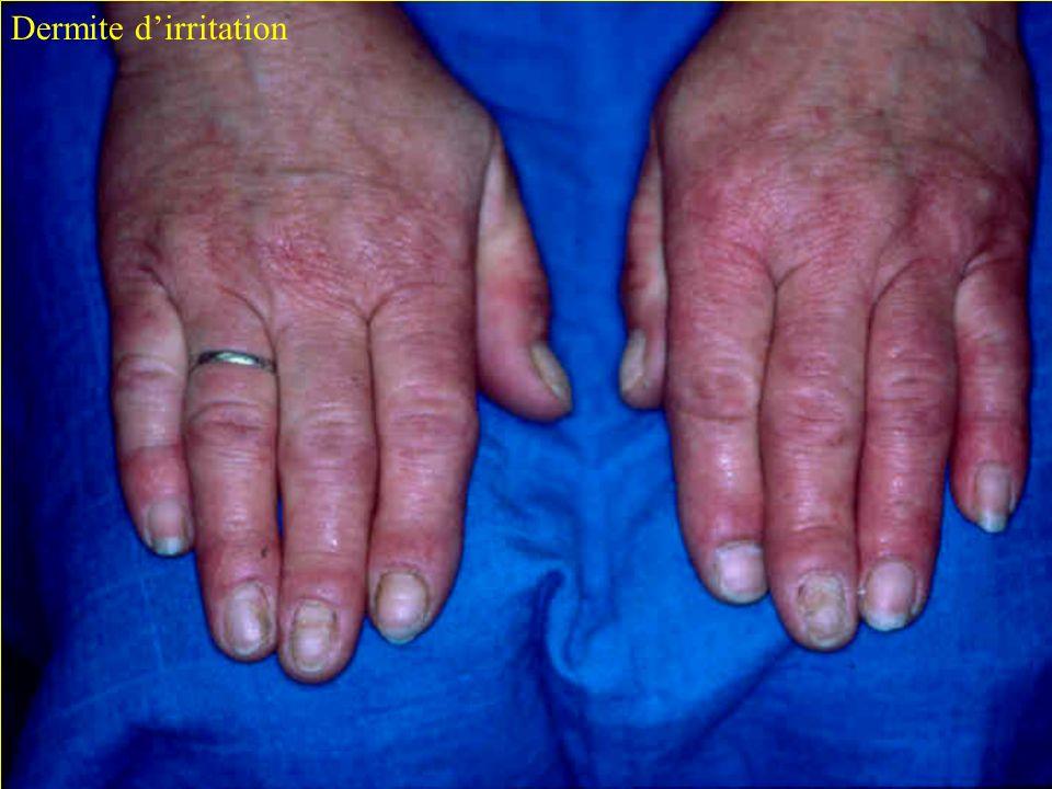 C. Verdun-Esquer Journées Hygiène Hospitalière 2006 page 10 Dermite dirritation