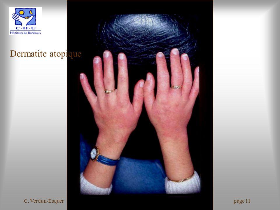 C. Verdun-Esquer Journées Hygiène Hospitalière 2006 page 11 Dermatite atopique