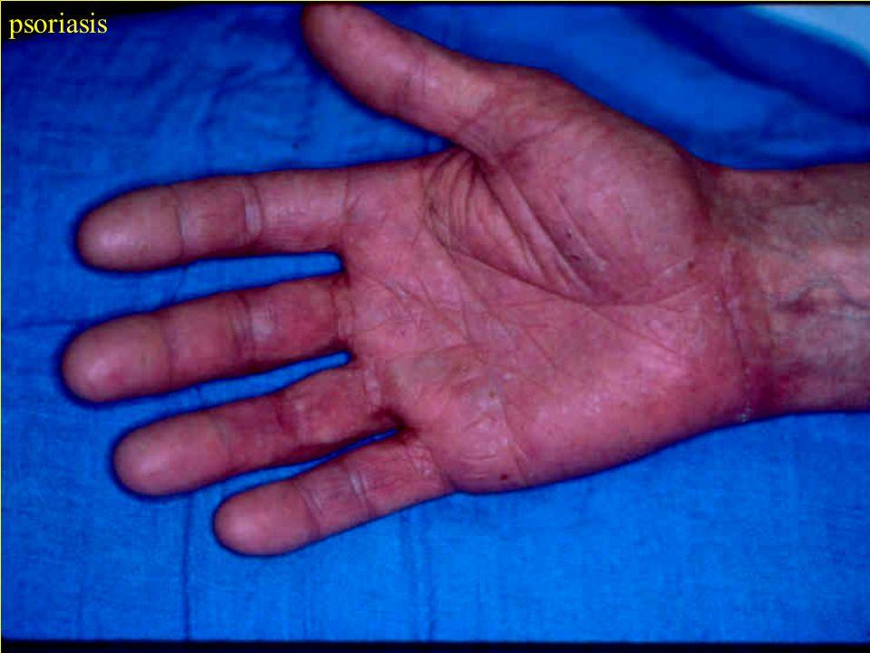 C. Verdun-Esquer Journées Hygiène Hospitalière 2006 page 12 psoriasis