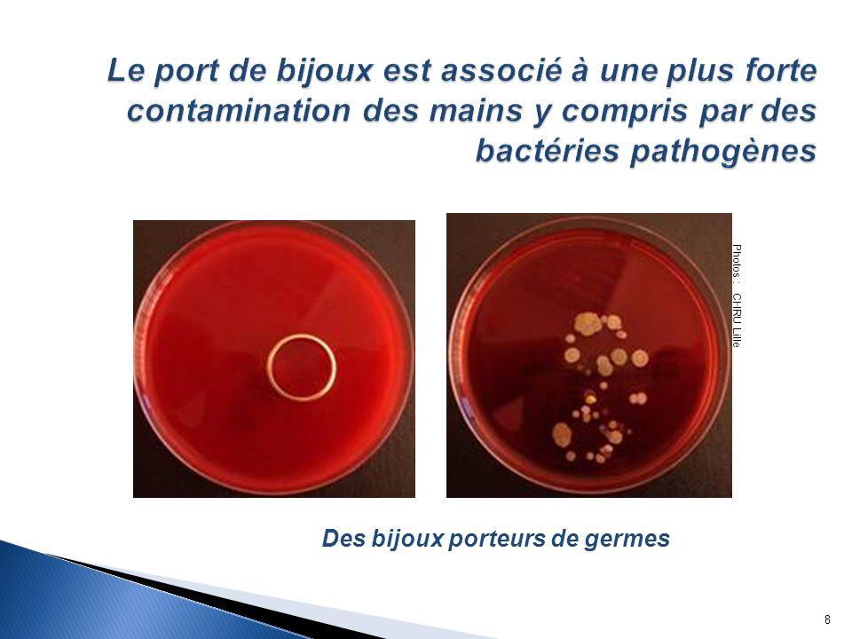 Le port de bijoux est associé à une plus forte contamination des mains y compris par des bactéries pathogènes Photos : CHRU Lille Des bijoux porteurs de germes 9