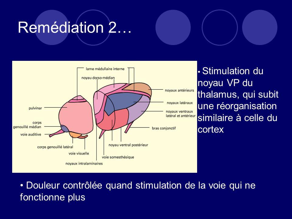 Remédiation 2… Stimulation du noyau VP du thalamus, qui subit une réorganisation similaire à celle du cortex Douleur contrôlée quand stimulation de la