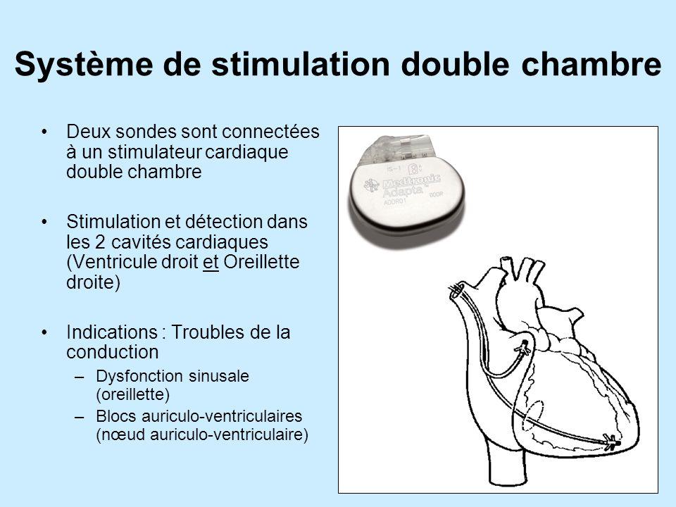 Système de stimulation double chambre Deux sondes sont connectées à un stimulateur cardiaque double chambre Stimulation et détection dans les 2 cavités cardiaques (Ventricule droit et Oreillette droite) Indications : Troubles de la conduction –Dysfonction sinusale (oreillette) –Blocs auriculo-ventriculaires (nœud auriculo-ventriculaire)