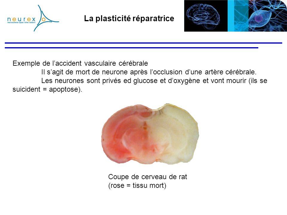 La plasticité réparatrice Exemple de laccident vasculaire cérébrale Il sagit de mort de neurone après locclusion dune artère cérébrale. Les neurones s