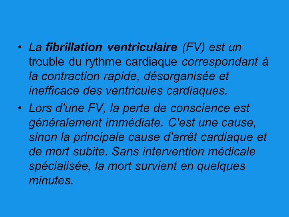 La fibrillation ventriculaire (FV) est un trouble du rythme cardiaque correspondant à la contraction rapide, désorganisée et inefficace des ventricule