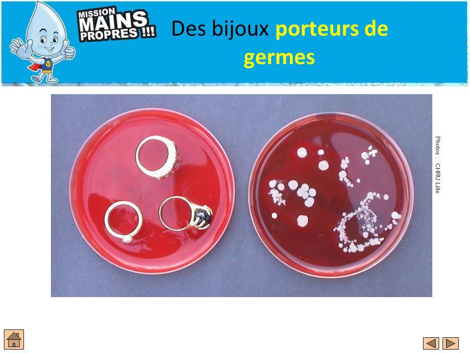 Des bijoux porteurs de germes Photos : CHRU Lille