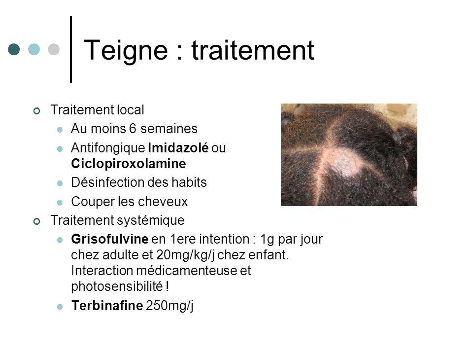 Teigne : traitement Traitement local Au moins 6 semaines Antifongique Imidazolé ou Ciclopiroxolamine Désinfection des habits Couper les cheveux Traite