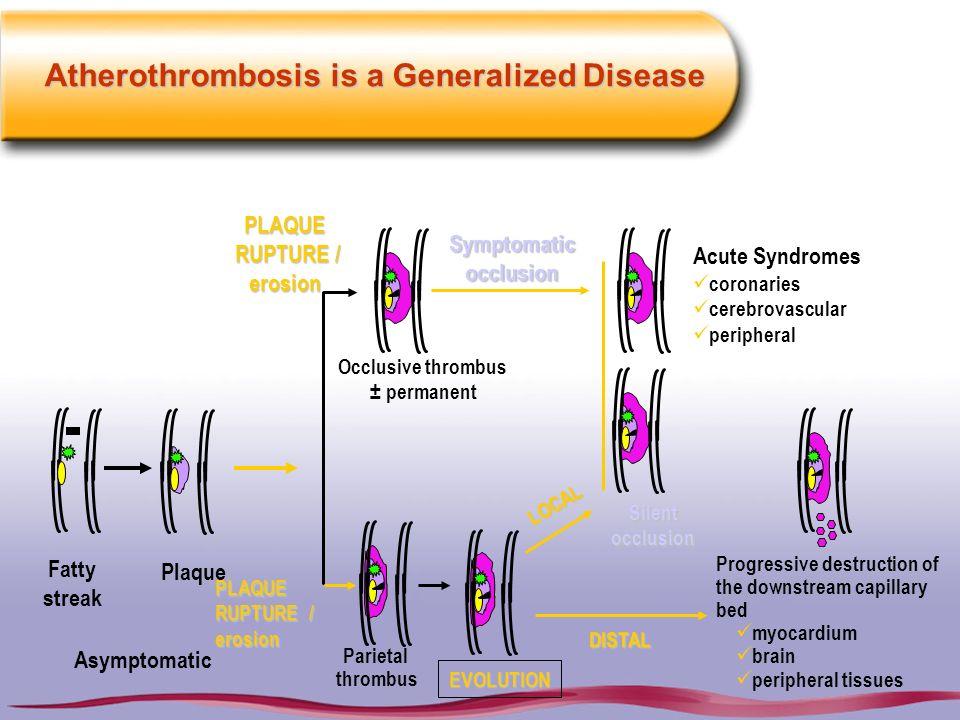 Atherothrombosis is a Generalized Disease Progressive destruction of the downstream capillary bed myocardium brain peripheral tissues Symptomaticocclu