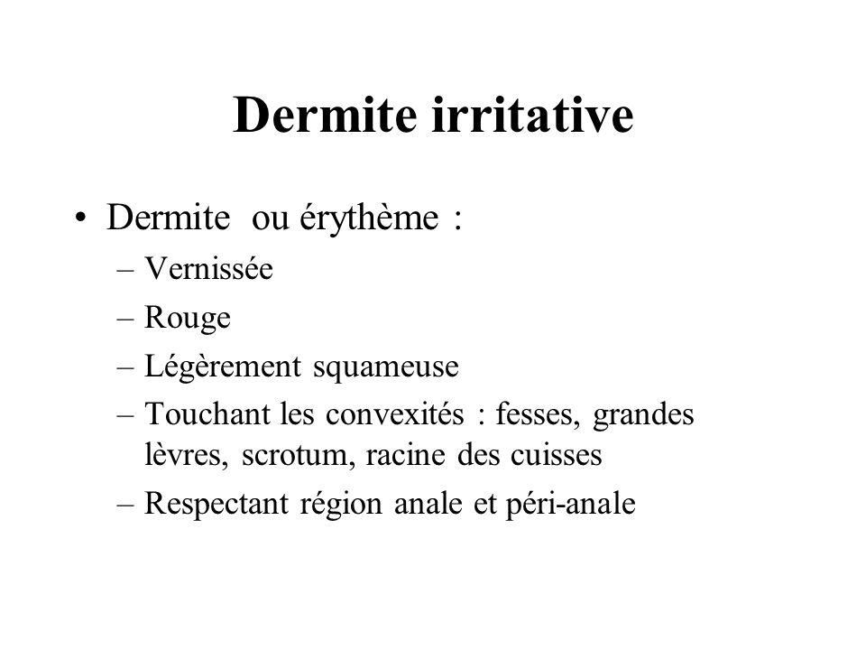 Dermite irritative Dermite ou érythème : –Vernissée –Rouge –Légèrement squameuse –Touchant les convexités : fesses, grandes lèvres, scrotum, racine de