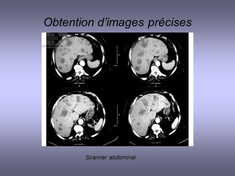 Obtention dimages précises Scanner abdominal