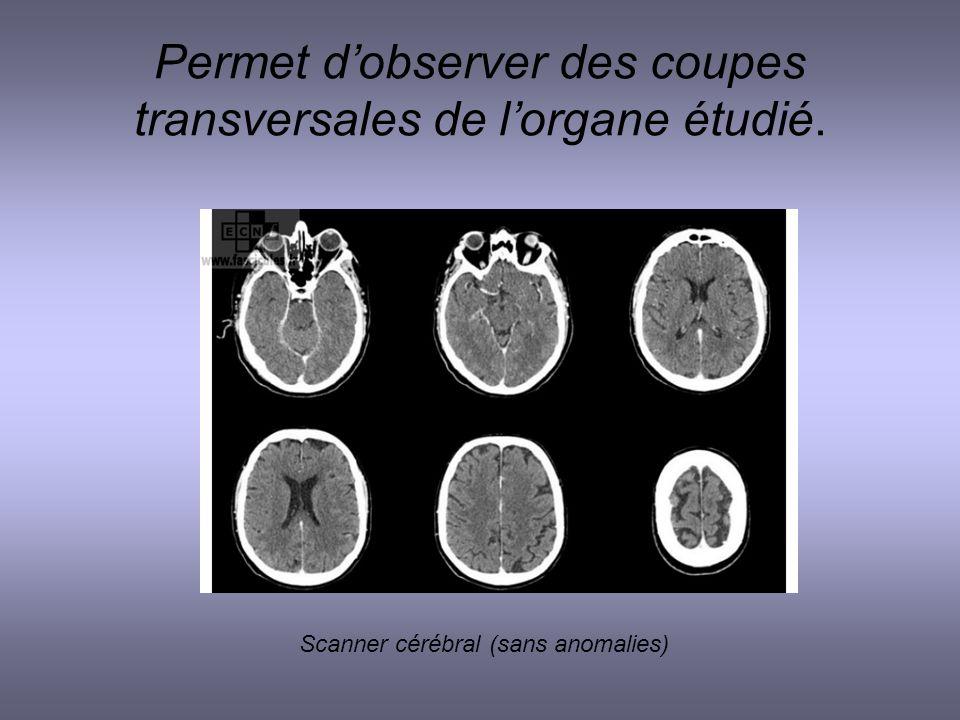 Permet dobserver des coupes transversales de lorgane étudié. Scanner cérébral (sans anomalies)