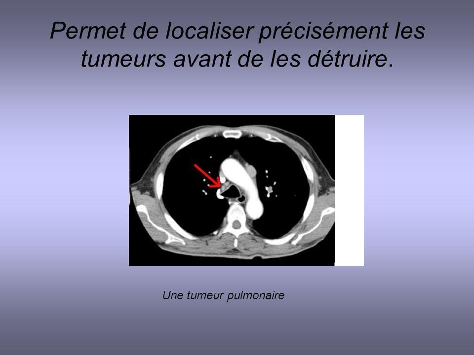 Permet de localiser précisément les tumeurs avant de les détruire. Une tumeur pulmonaire