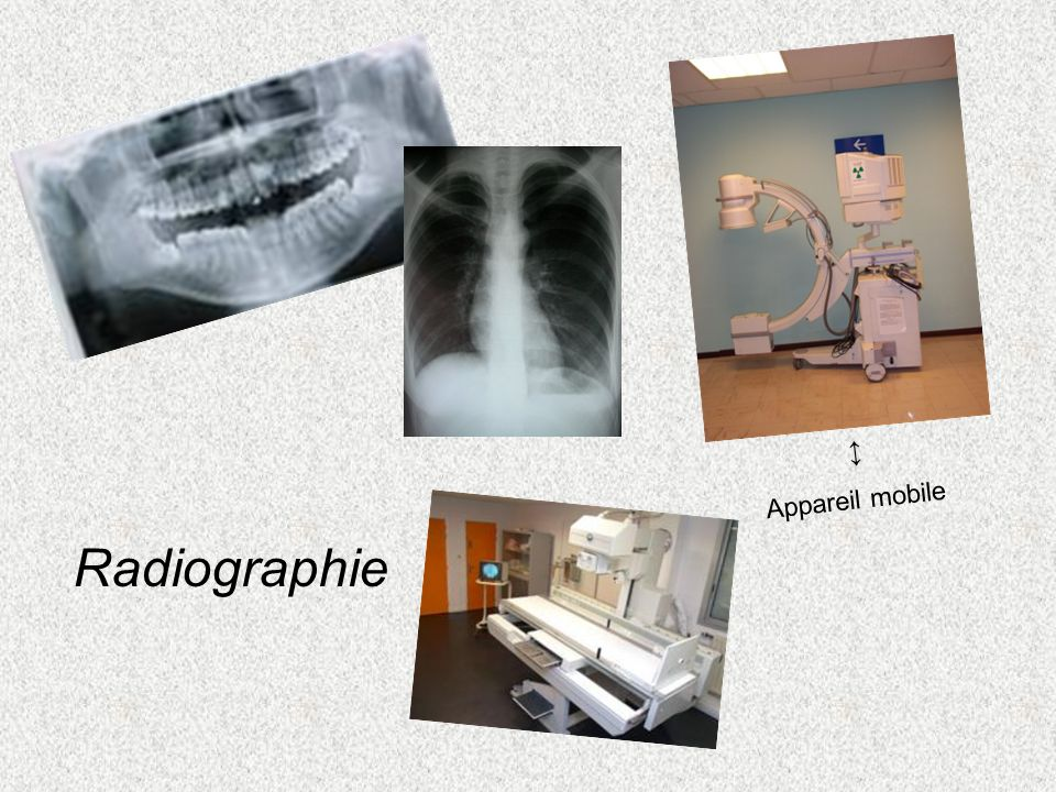 Radiographie Appareil mobile