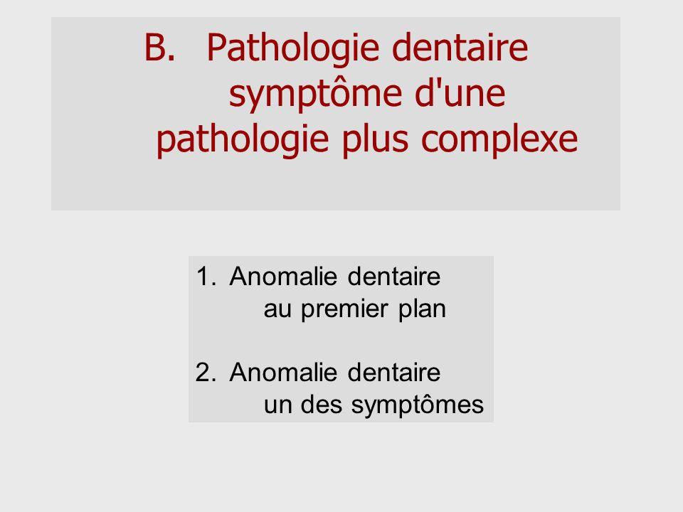 B.Pathologie dentaire symptôme d'une pathologie plus complexe 1.Anomalie dentaire au premier plan 2.Anomalie dentaire un des symptômes