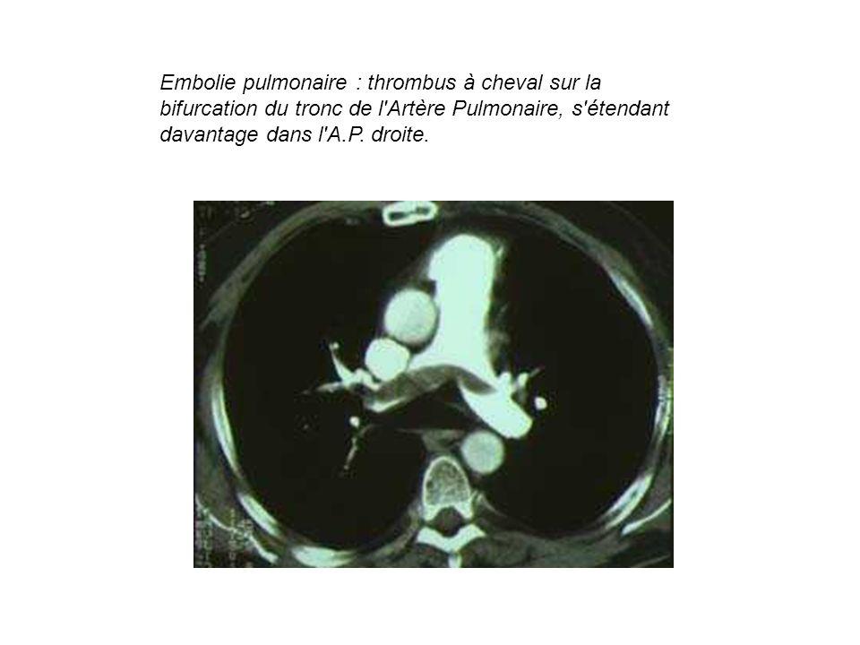 Embolie pulmonaire : thrombus à cheval sur la bifurcation du tronc de l'Artère Pulmonaire, s'étendant davantage dans l'A.P. droite.