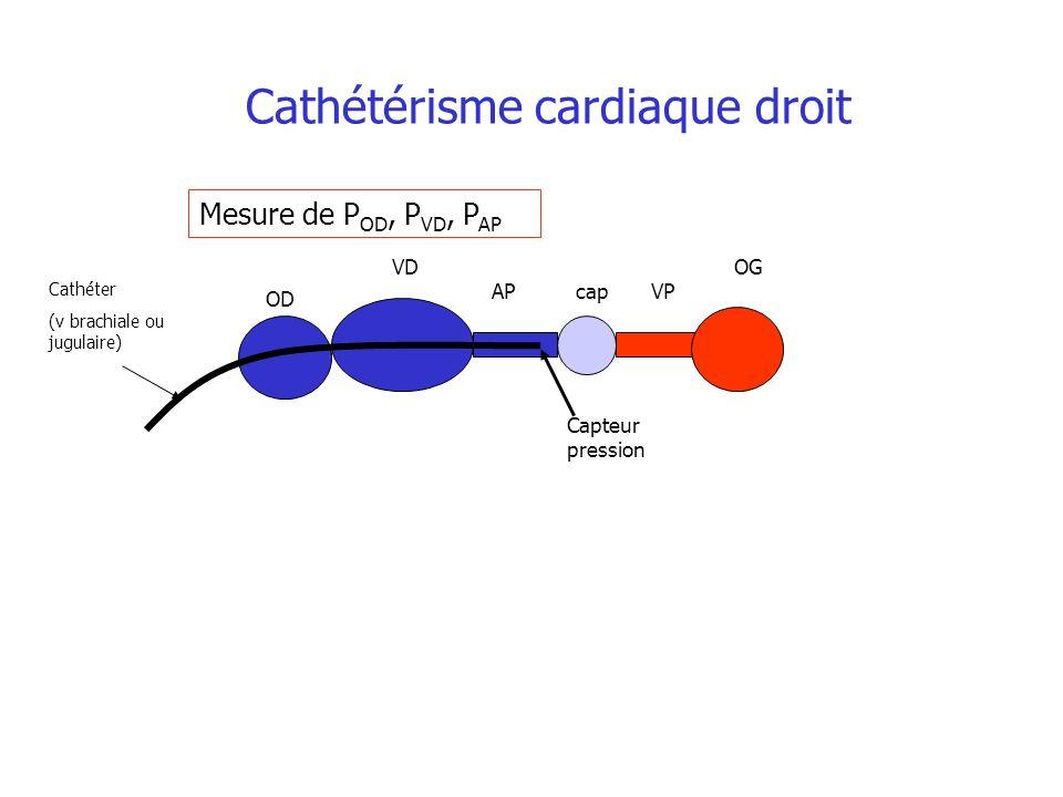 Cathétérisme cardiaque droit Mesure de P OD, P VD, P AP Cathéter (v brachiale ou jugulaire) OD VD APcapVP OG Capteur pression
