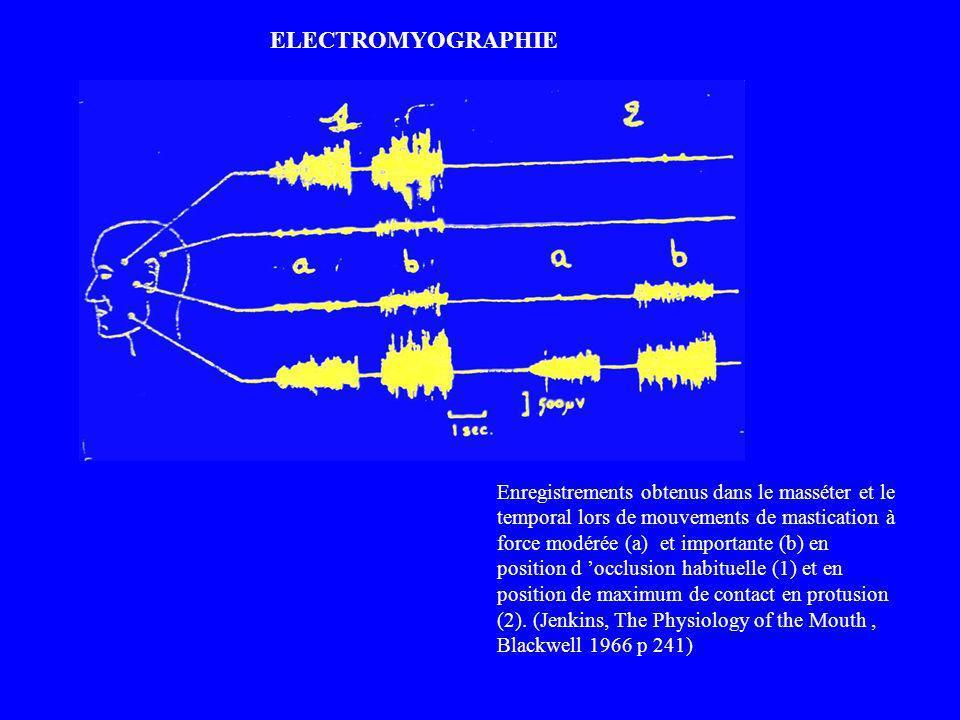 Enregistrements obtenus dans le masséter et le temporal lors de mouvements de mastication à force modérée (a) et importante (b) en position d occlusio