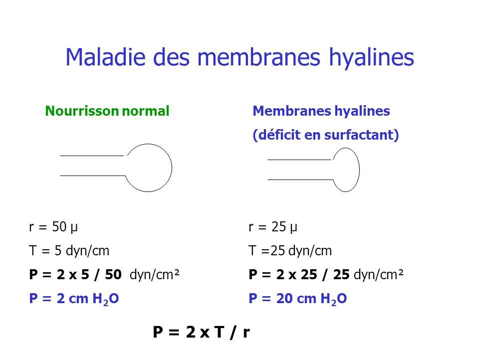 Maladie des membranes hyalines Nourrisson normalMembranes hyalines (déficit en surfactant) r = 50 µ T = 5 dyn/cm P = 2 x 5 / 50 dyn/cm² P = 2 cm H 2 O