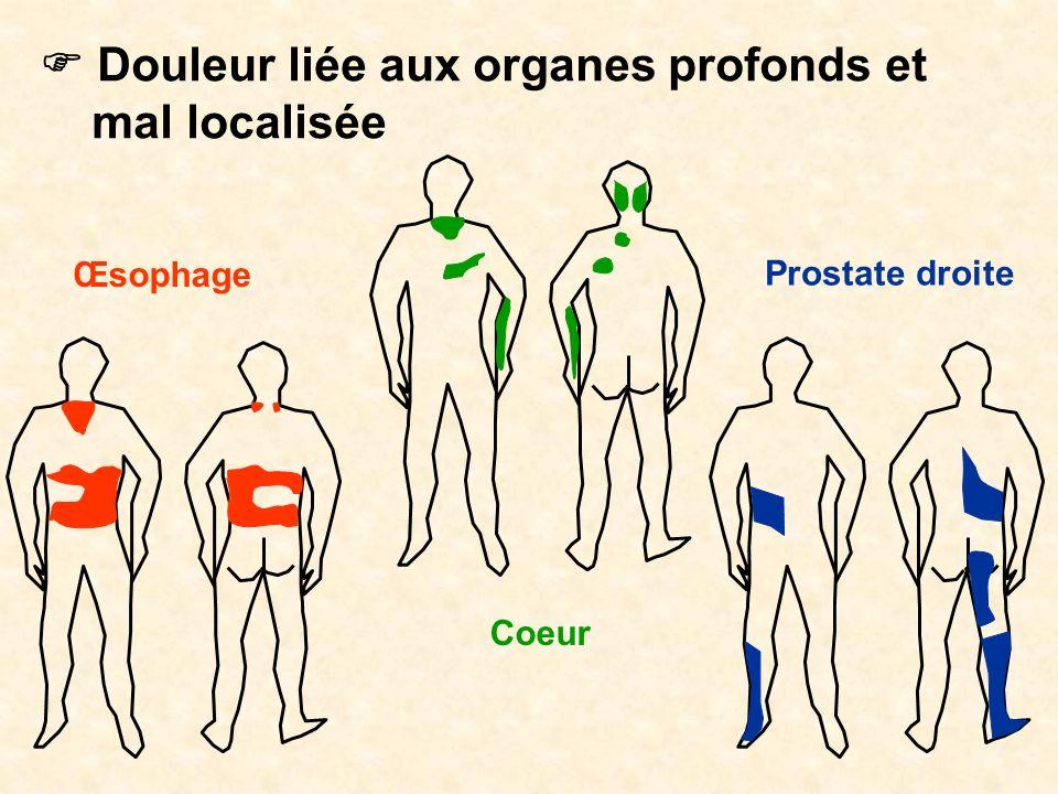 Douleur liée aux organes profonds et mal localisée Œsophage Coeur Prostate droite