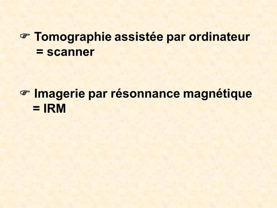 Tomographie assistée par ordinateur = scanner Imagerie par résonnance magnétique = IRM