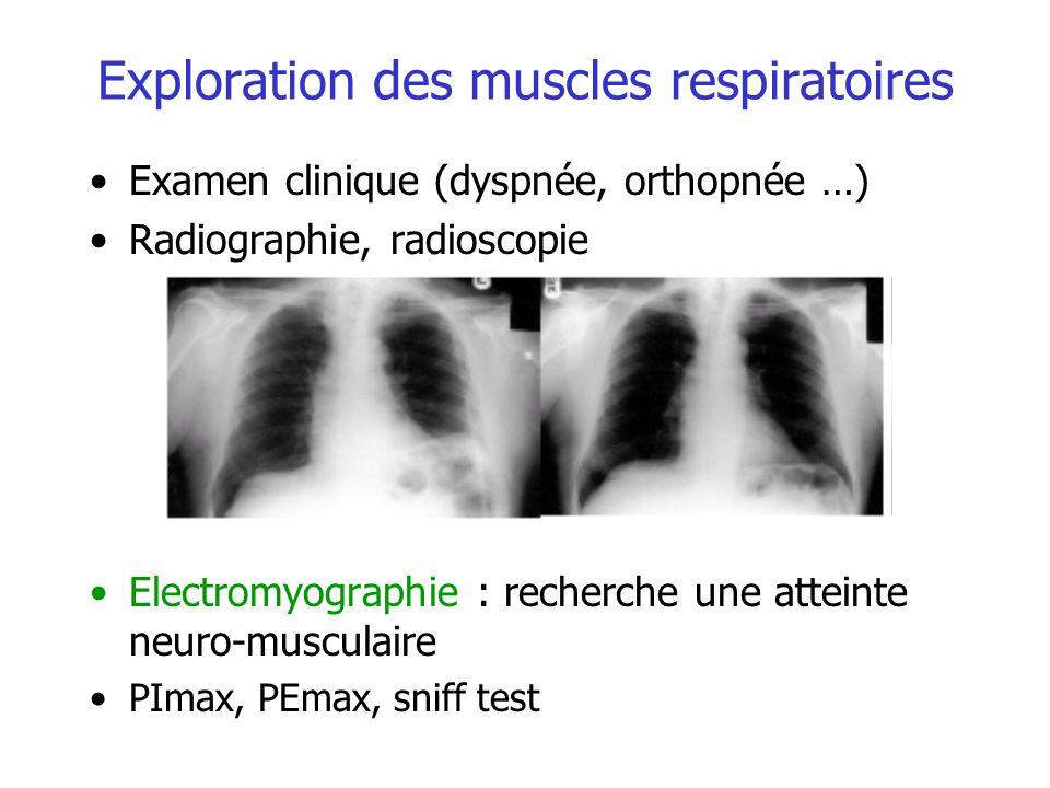 Exploration des muscles respiratoires Examen clinique (dyspnée, orthopnée …) Radiographie, radioscopie Electromyographie : recherche une atteinte neur