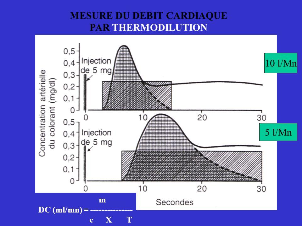 MESURE DU DEBIT CARDIAQUE PAR THERMODILUTION m DC (ml/mn) = --------------- c X T 10 l/Mn 5 l/Mn