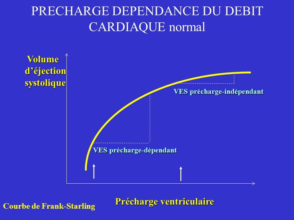 Précharge ventriculaire Volume Volumedéjectionsystolique VES précharge-dépendant VES précharge-indépendant Courbe de Frank-Starling PRECHARGE DEPENDAN
