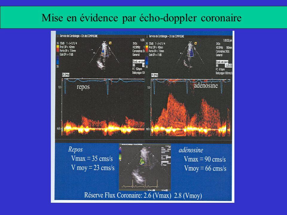 Mise en évidence par écho-doppler coronaire
