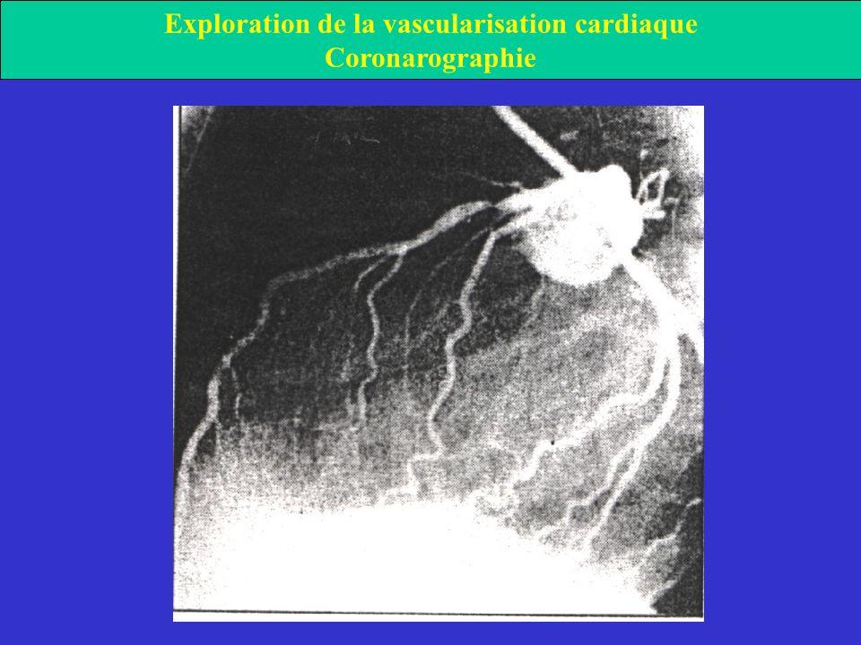 Exploration de la vascularisation cardiaque Coronarographie