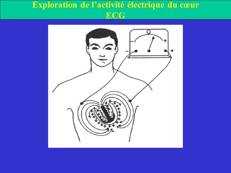 Exploration de lactivité électrique du cœur ECG