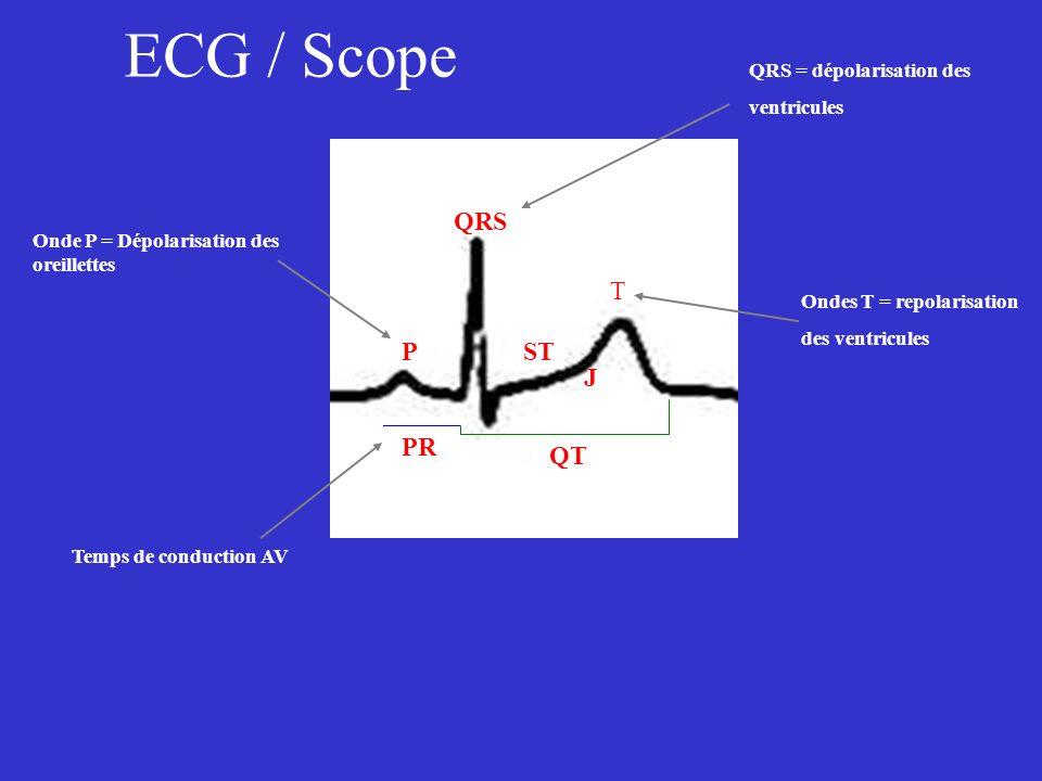 ECG / Scope P PR QRS T QT ST J Onde P = Dépolarisation des oreillettes Temps de conduction AV QRS = dépolarisation des ventricules Ondes T = repolaris