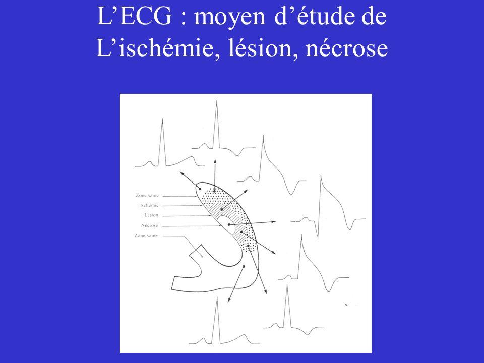 LECG : moyen détude de Lischémie, lésion, nécrose