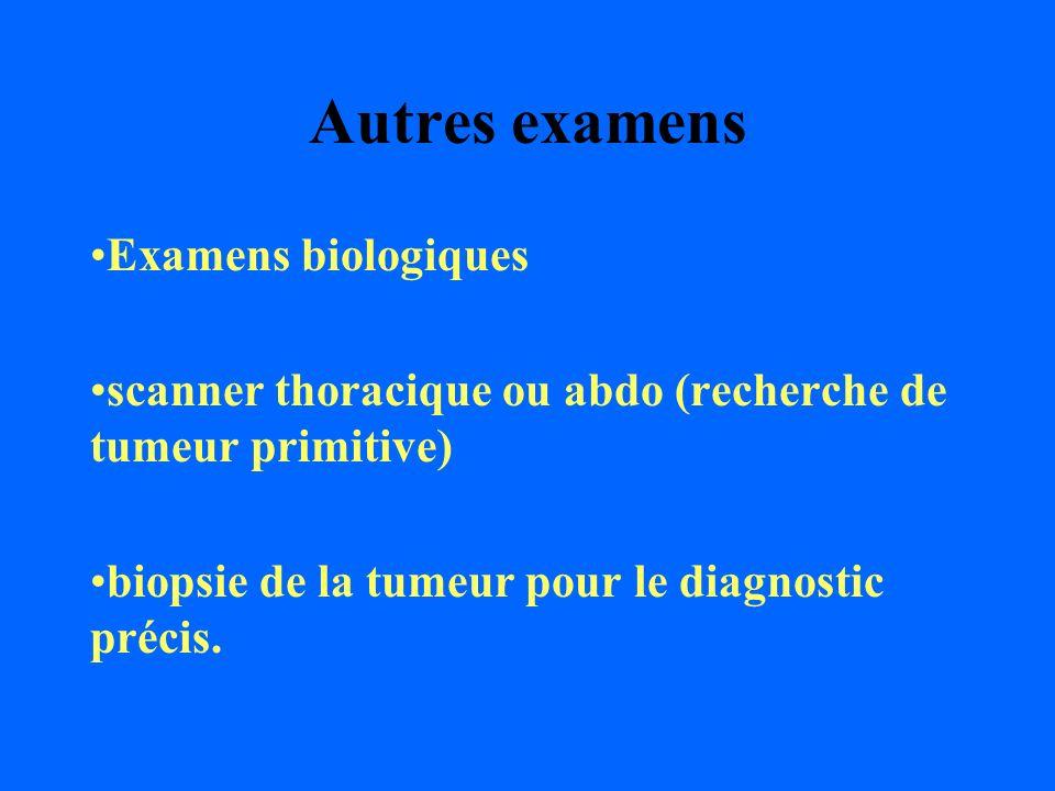 Autres examens Examens biologiques scanner thoracique ou abdo (recherche de tumeur primitive) biopsie de la tumeur pour le diagnostic précis.