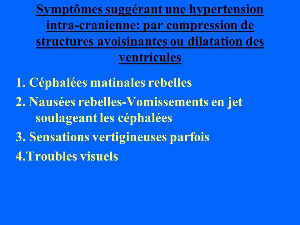 Symptômes suggérant une hypertension intra-cranienne: par compression de structures avoisinantes ou dilatation des ventricules 1. Céphalées matinales