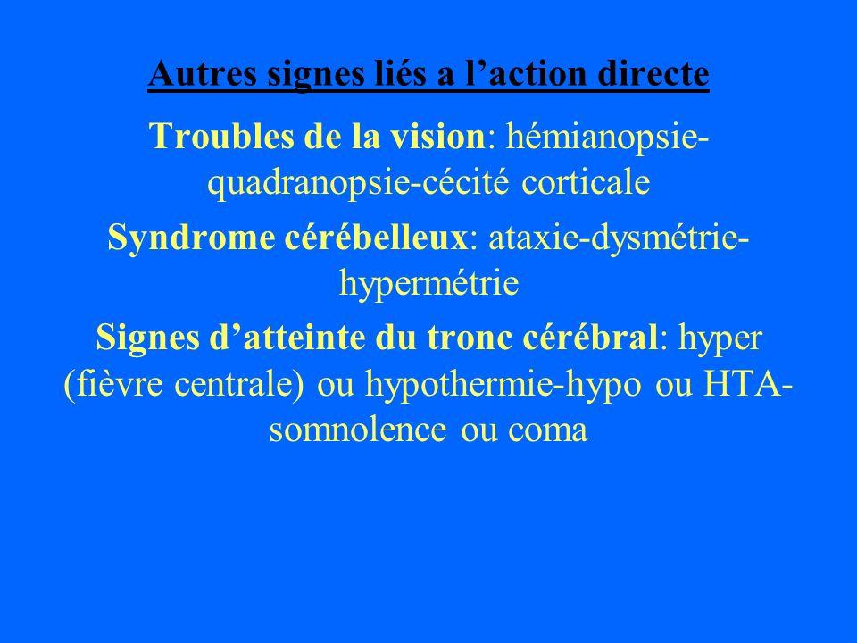 Autres signes liés a laction directe Troubles de la vision: hémianopsie- quadranopsie-cécité corticale Syndrome cérébelleux: ataxie-dysmétrie- hypermé