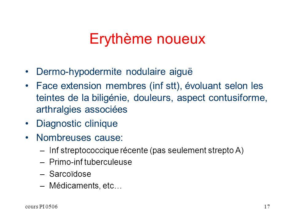 cours PI 050617 Erythème noueux Dermo-hypodermite nodulaire aiguë Face extension membres (inf stt), évoluant selon les teintes de la biligénie, douleu