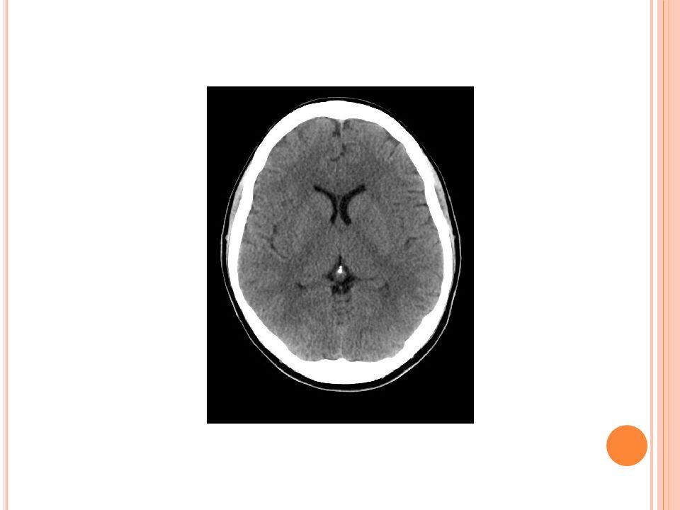 DIAGNOSTIC Le cœur sémiologique de la maladie de Parkinson est un syndrome parkinsonien pur, réversible sous traitement dopaminergique.