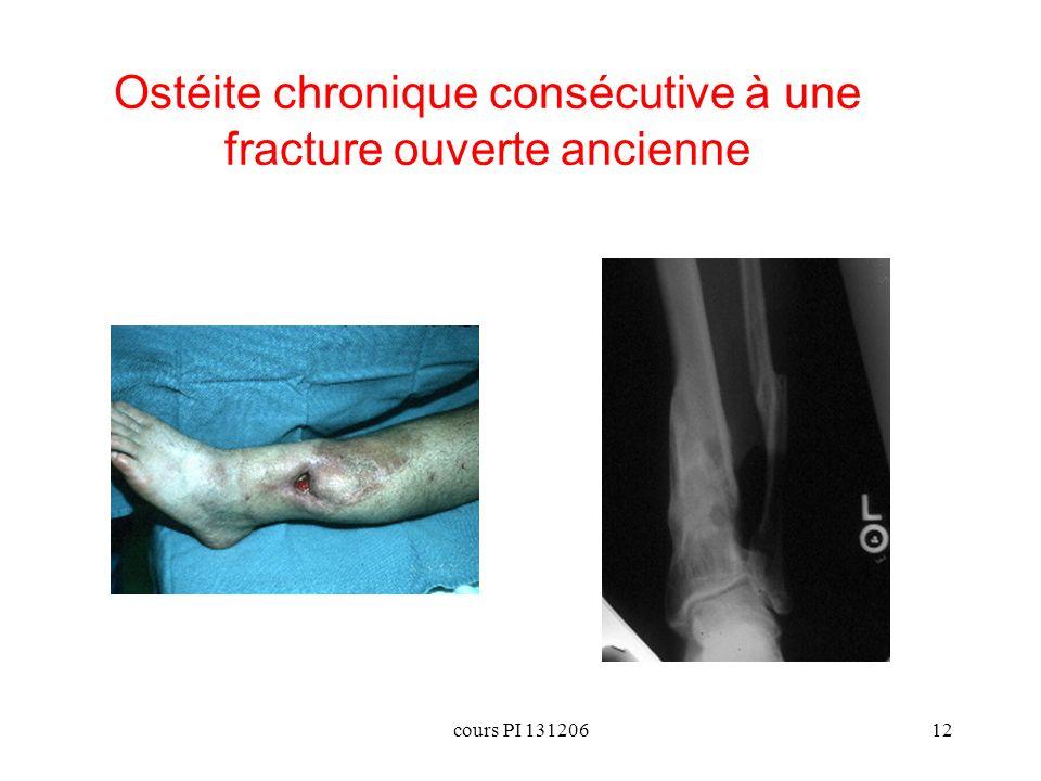 cours PI 13120612 Ostéite chronique consécutive à une fracture ouverte ancienne