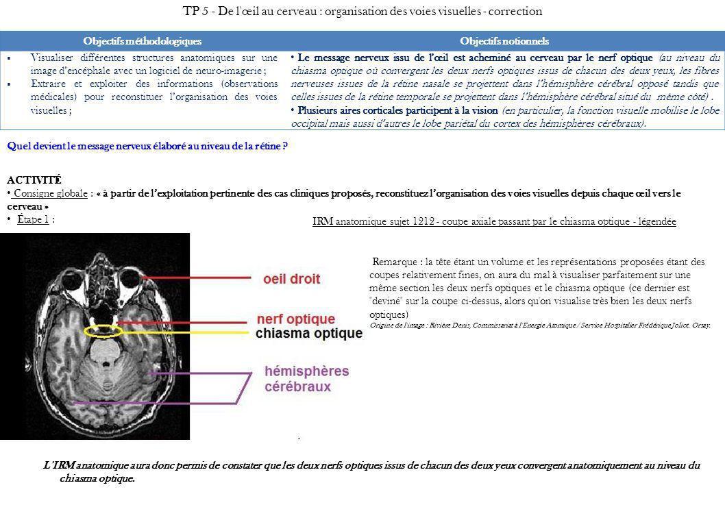 Étape 2 : --> Test du schéma hypothétique 1 Schéma hypothétique testé Hypothèse 1 Conséquence vérifiable (dysfonctionnement prévisible en relation avec le diagnostic du cas clinique) Si le schéma hypothétique 1 est exact, alors une lésion du cortex occipital de l hémisphère droit doit se traduire par un déficit complet du champ visuel de l œil droit et aucun déficit du champ visuel de l œil gauche.