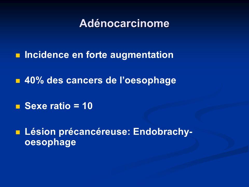 Adénocarcinome Incidence en forte augmentation 40% des cancers de loesophage Sexe ratio = 10 Lésion précancéreuse: Endobrachy- oesophage