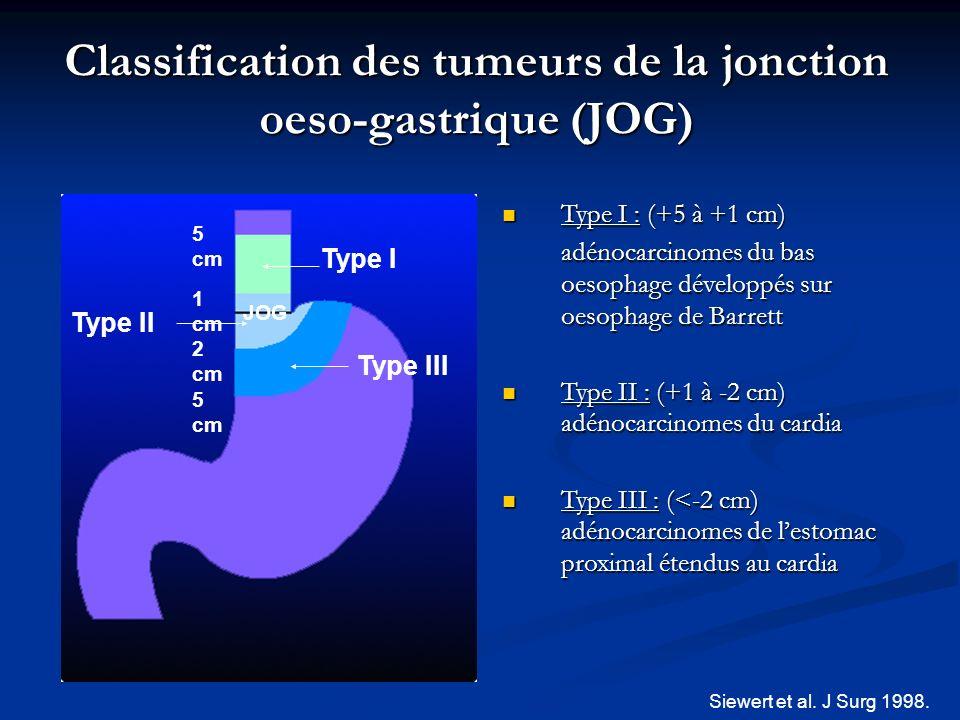 Classification des tumeurs de la jonction oeso-gastrique (JOG) Type I : (+5 à +1 cm) Type I : (+5 à +1 cm) adénocarcinomes du bas oesophage développés
